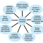 Cuadros sinópticos sobre anorexia