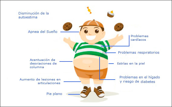 obesidadinfografia-ale