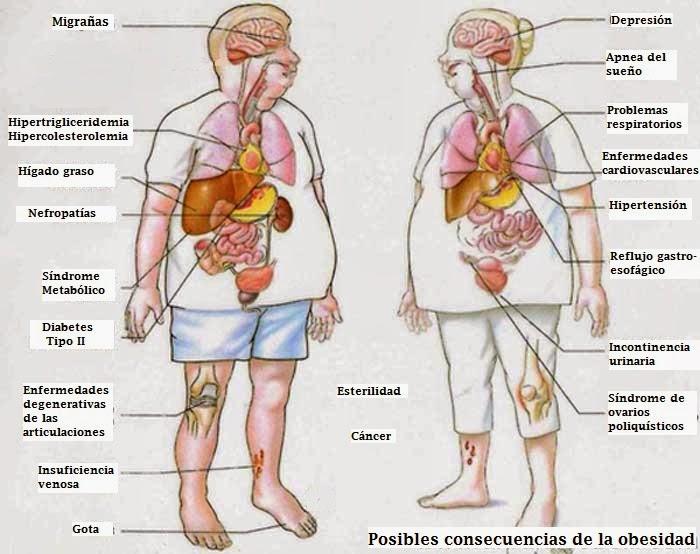 Cuadros sinópticos sobre obesidad infantil | Cuadro ...