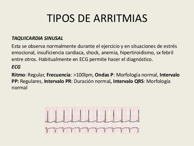 arritmias-1-42-638