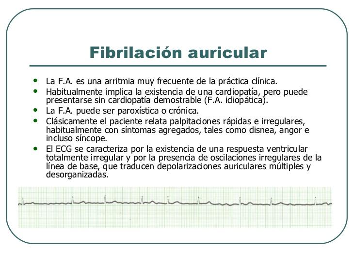 arritmias-cardiacas-medicos-rte-graduacin-43-728