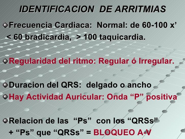 arritmias-diaagnostico-rpido-y-fcil-6-728