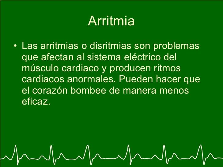 arritmiaselectrocardiograma-y-arritmia-29-728