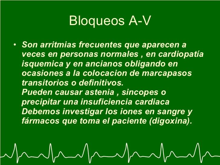 arritmiaselectrocardiograma-y-arritmia-50-728