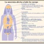 Cuadros comparativos entre bulimia y anorexia