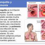 Cuadros comparativos entre Pulmonía y Bronquitis