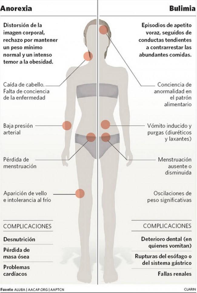 Anorexia-bulimia_CLAIMA20101126_0085_22