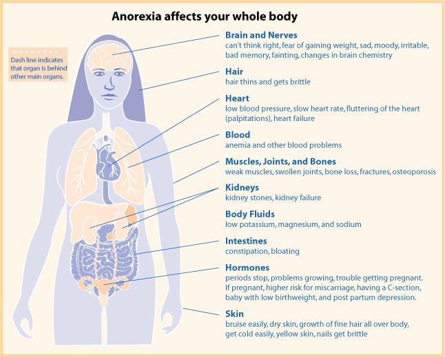 anorexiafaqdia06