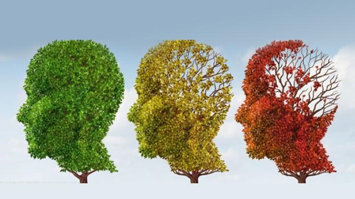 alzCientíficos-identifican-una-proteína-clave-para-tratar-el-Alzheimer