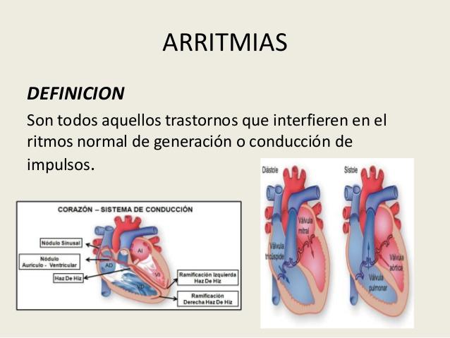 arritmias-1-3-638