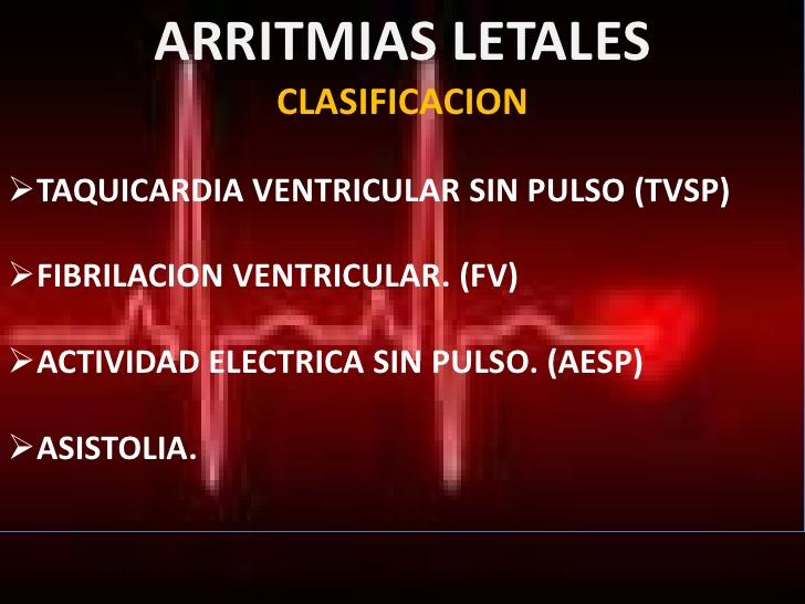 arritmias-letales-de-teniza-8-728