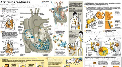 arritmias2011_img_preview_infografico_arritmias
