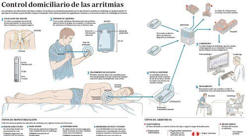 arritmias2015-img-preview-infco-control-arritmias