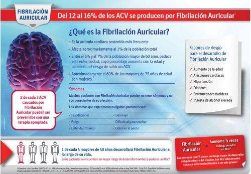 arritmiasfibrilacion-auricular