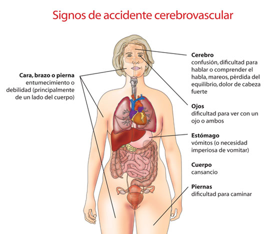 parosigns-of-stroke-diagram-spanish