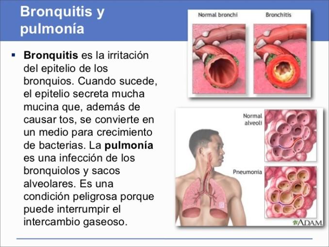 porque se produce una bronquitis