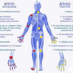Diferencias entre Artritis y Artrosis cuadros comparativos