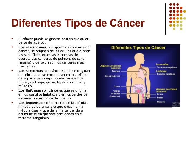 Cancer de diferentes tipos